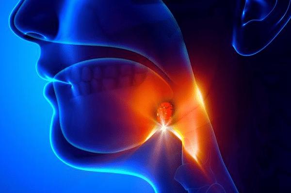 扁桃体发炎位置 腭扁桃体总是反复发炎,切除掉更好吗? 扁桃体发炎图片