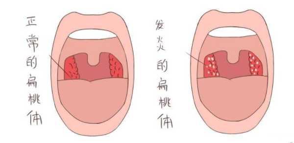 正常的扁桃体与发炎的扁桃体 扁优网:孩子扁桃体肥大手术切除,后期会影响孩子正常发育吗? 扁桃体相关问题