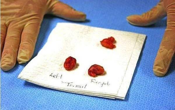 腺样体切除组织 切除腺样体后悔到家了,宝妈真实案例分享! 扁桃体相关问题