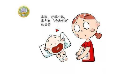 下载 (1).jpg 腺样体肥大最佳治疗期,关乎孩子的成长,父母注意了! 腺样体肥大专题