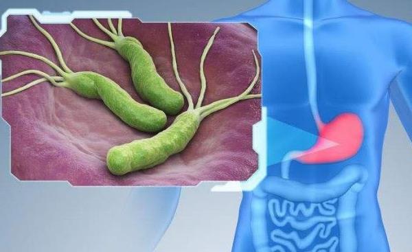 怎样自测幽门螺杆菌 怎样自测幽门螺杆菌,轻松2招自测是否感染! 胃肠道相关好文