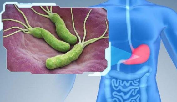 幽门螺杆菌标准四联药 幽门螺杆菌标准四联药,你了解吗? 胃肠道相关好文