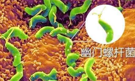 幽门螺杆菌标准四联药g 幽门螺杆菌标准四联药,你了解吗? 胃肠道相关好文