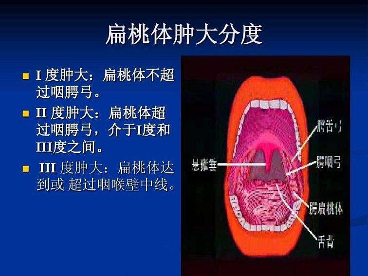 扁桃体一度二度三度图片 扁桃体一度二度三度图片 扁桃体相关问题