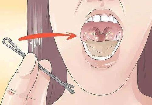 扁桃体发炎发烧要几天,你知道吗?