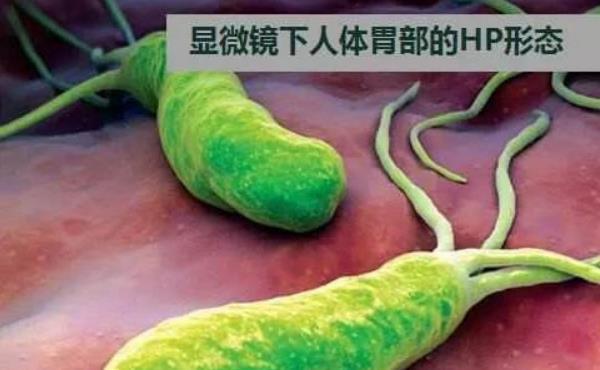 幽门螺杆菌最怕三种药 幽门螺杆菌最怕三种药,坚持服用,根除病菌! 胃肠道相关好文