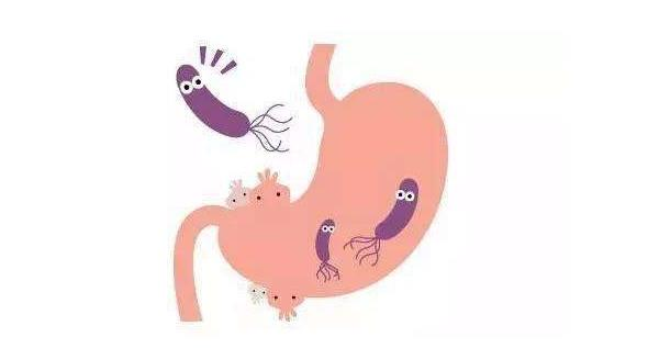 q.jpg 幽门螺杆菌可以接吻吗,真相竟是这样! 胃肠道相关好文