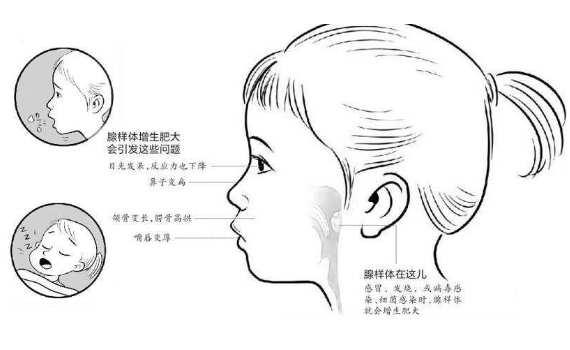 下载 (1).jpg 腺样体面容恢复的方法,较难恢复,还需坚持! 腺样体肥大专题