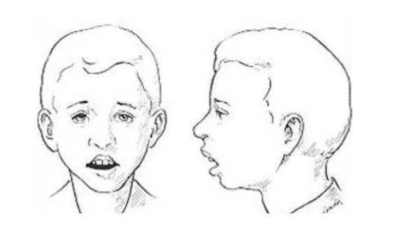 下载 (2).jpg 腺样体面容恢复的方法,较难恢复,还需坚持! 腺样体肥大专题