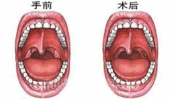 图片1.png 扁桃体发炎快好的征兆你知道是什么吗? 扁桃体相关问题