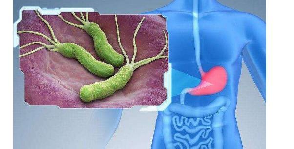 螺旋幽门杆菌能自愈吗 螺旋幽门杆菌能自愈吗?不要心存侥幸心理! 胃肠道相关好文