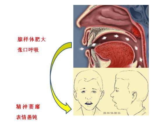 腺样体肥大的嘴唇图片 腺样体肥大的嘴唇图片,如何治疗? 腺样体肥大专题