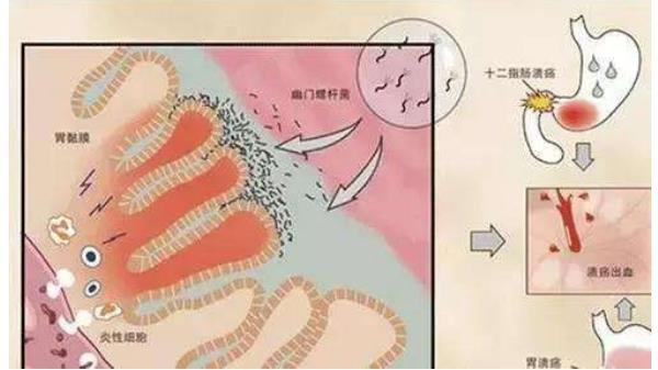 幽门杆菌4联药哪几样?怎样组合的? 胃肠道相关好文