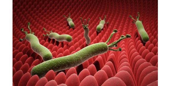 幽门螺杆菌1500算高吗 幽门螺杆菌1500算高吗?正常指标是多少? 胃肠道相关好文