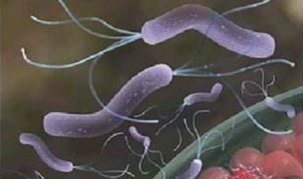 幽门螺杆菌检测数值范围 幽门螺杆菌检测数值范围,得了幽门螺旋杆菌应当怎么办? 胃肠道相关好文