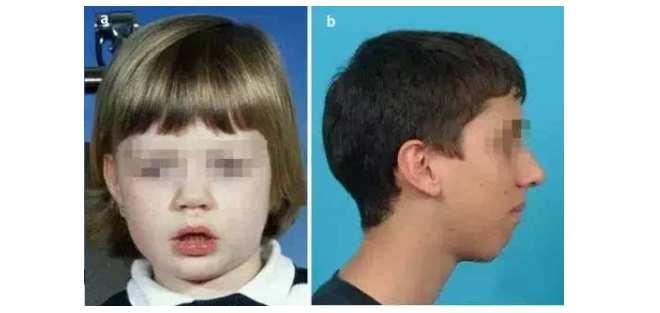 7岁娃腺样体大面容照片 7岁娃腺样体大面容照片,父母们要了解这些 腺样体肥大专题
