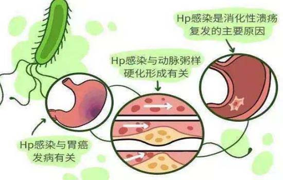 怎样根治幽门螺旋杆菌,如何彻底根治 怎样根治幽门螺旋杆菌,如何彻底根治 胃肠道相关好文