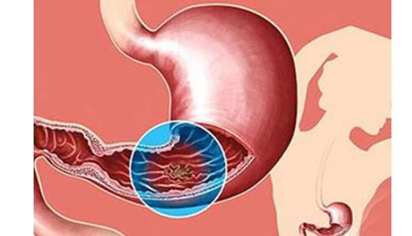 """幽门螺杆菌癌变概率 幽门螺杆菌癌变概率,防止癌变从4个""""小动作""""做起! 胃肠道相关好文"""