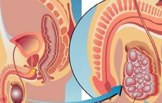鞘膜积液真正图片,鞘膜积液是啥 鞘膜积液真正图片,鞘膜积液是啥 泌尿系健康栏目