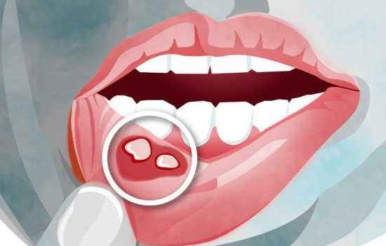 幽门螺旋杆菌舌头图片,有以下症状要注意! 幽门螺旋杆菌舌头图片,有以下症状要注意! 胃肠道相关好文