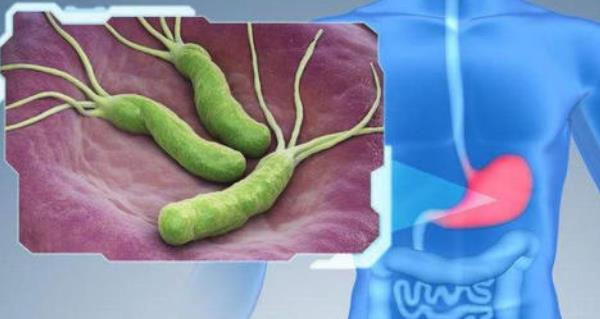 幽门螺杆菌8000 幽门螺杆菌8000,严重吗? 胃肠道相关好文