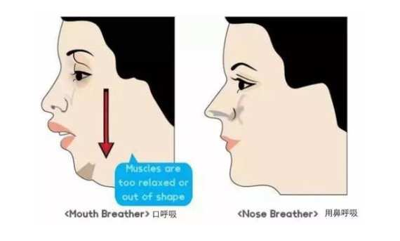 腺样体肥大脸部变化图 腺样体肥大脸部变化图,该这样做! 腺样体肥大专题
