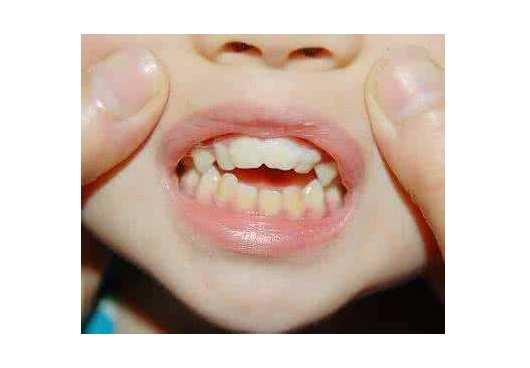 13岁腺样体肥大牙齿矫正 13岁腺样体肥大牙齿矫正,预防有方! 腺样体肥大专题