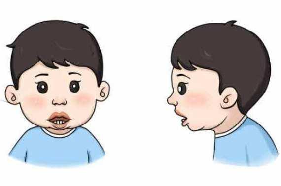 腺样体面容的牙齿图片 腺样体面容的牙齿图片,怎么恢复? 腺样体肥大专题
