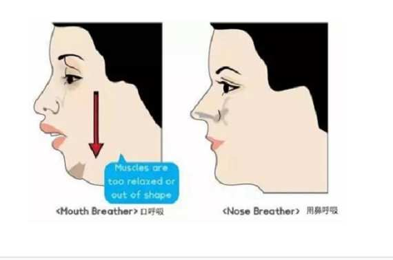 腺样体面容图片 腺样体面容图片,如何预防? 耳鼻喉健康栏目