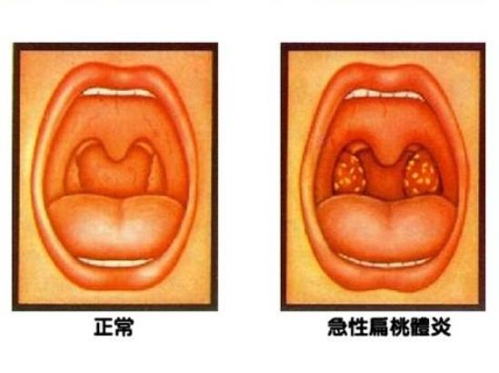 想让扁桃体萎缩,你知道应该吃什么吗? 想让扁桃体萎缩,你知道应该吃什么吗? 扁桃体相关问题