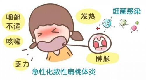 孩子扁桃体发炎,做家长的一定要注意!