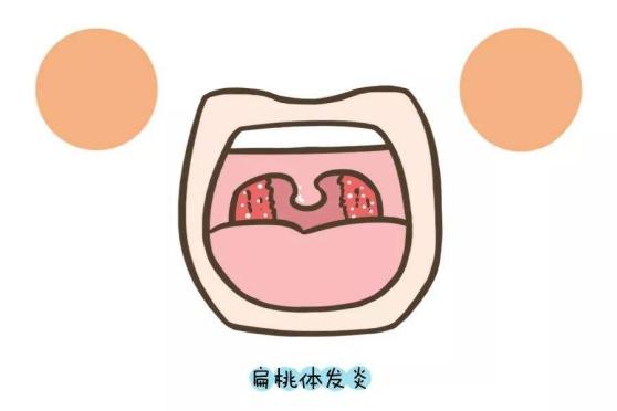 儿童扁桃体肿大的症状,你知道有哪些吗?