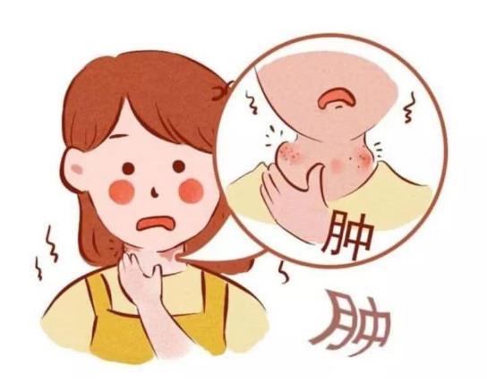 扁桃体慢性期发炎的症状,你知道有哪些吗?