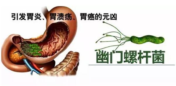 幽门螺杆菌会传染人吗,该如何治疗呢?