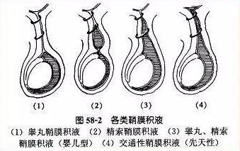 QQ截图20210420100131.png 本篇将告诉你鞘膜积液是如何引起的! 泌尿系健康栏目