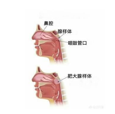 QQ截图20210608104040.png 孩子得了腺样体肥大,会有哪些危害 腺样体肥大专题