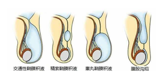 鞘膜积液必须手术吗,以下内容来告诉你。