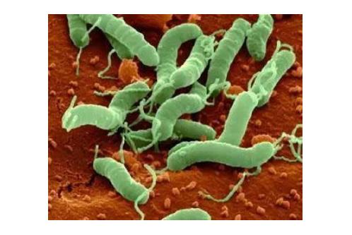 幽门螺杆菌阳性是什么病呢,一起来看看吧