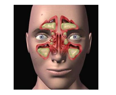 治疗鼻窦炎最快最有效的方法,快一起来看看吧