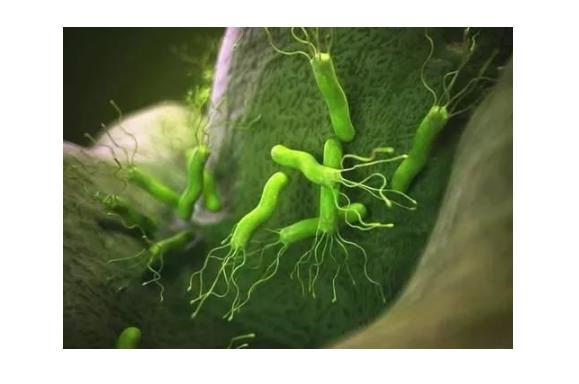 得了幽门螺杆菌怎么饮食,不易事项本章内容来告诉你